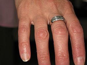 English: Wedding anniversary diamond ring.