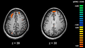 English: Image showing brain areas more active...