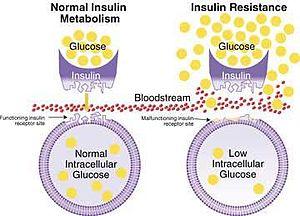 English: insulin resistance model