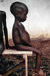 https://i1.wp.com/upload.wikimedia.org/wikipedia/commons/thumb/4/47/Starved_girl.jpg/170px-Starved_girl.jpg?w=1080