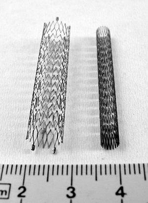 Stents for peripheral vessels