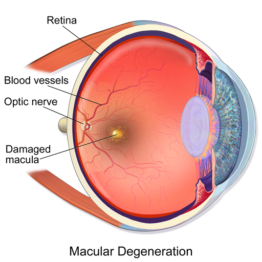 Macular Degeneration illustration showing a cross section of the eye with the retina, blood vessels and optic nerve labeled at the back of the eye and an area labeled damaged macula between the optic nerve and the front of the eye