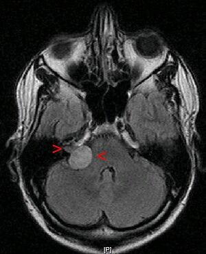 English: benign tumour: acoustic neuroma (also...