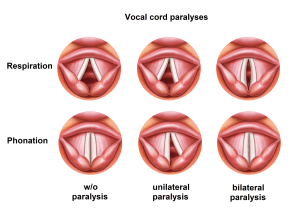 Vocal fold paresis  Wikipedia