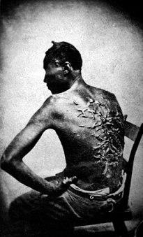 Cicatrices de flagellation sur un esclave
