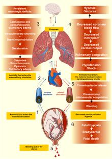 Pathophysiology of the amniotic fluid embolism [1]