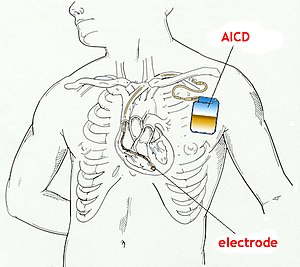 Automatic implantable cardioverter defibrillator.