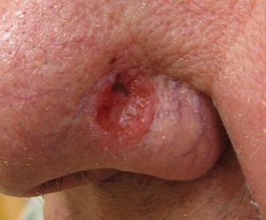Close up of a basal cell carcinoma