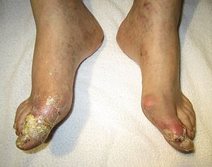 English: Severe gout complicated by tophi (exu...