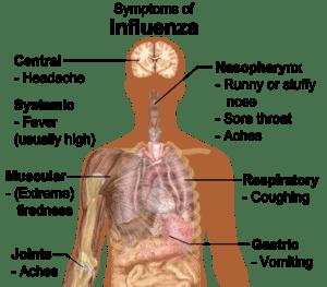 English: Main symptoms of influenza. (See Wiki...