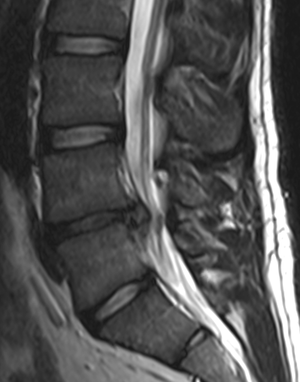 English: MRI of a disc extrusion of 15mm in th...