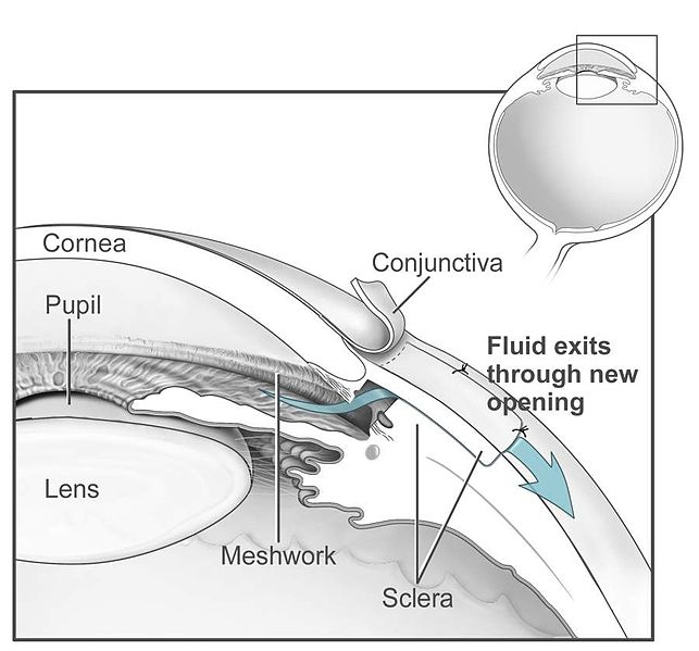 File:Conventional surgery to treat glaucoma EDA11.JPG