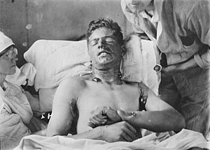 A Canadian soldier with mustard gas burns, ca....
