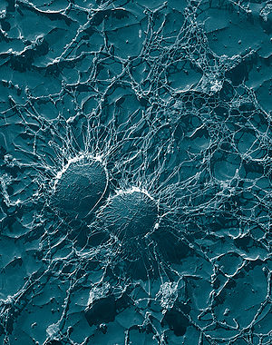 Bacterial cells of Staphylococcus aureus, whic...