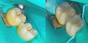 """Résultat de recherche d'images pour """"composite dentaire"""""""