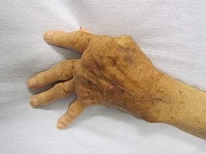 English: A hand affected by rheumatoid arthritis