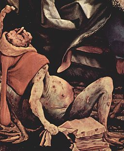 Painting of man in throes of agony, covered in pustules.