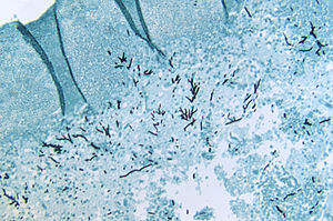 Slide of an infected turkey brain