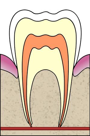 Cavities evolution 1 of 5 ArtLibre jnl