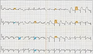 12 Lead ECG EKG showing ST Elevation (STEMI), ...
