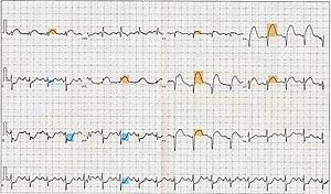 12 Lead ECG EKG showing ST Elevation (STEMI), ...