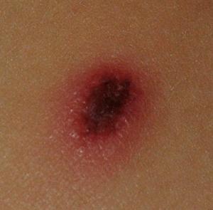 Lesion cutánea fiebre botonosa.