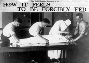 Djuna Barnes: How it Feels to Be Forcibly Fed