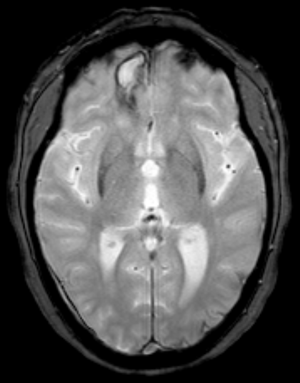 English: MRI-scan (T2* Haem) of a frontal intr...
