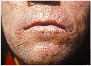 Chronic skin lesions of EPP: The skin of an ad...