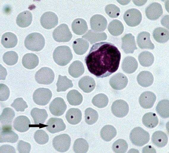 Anaplasma-centrale.jpg
