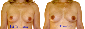 English: Breast changes during pregnancy