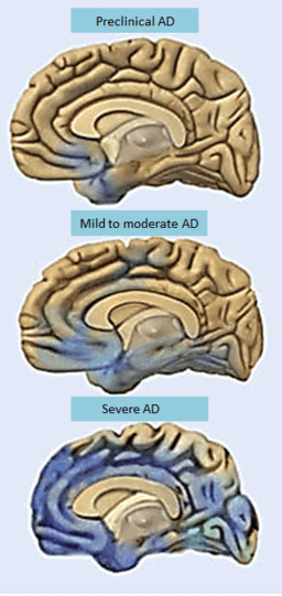 Alzheimers disease progression-brain degeneration