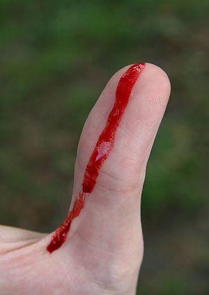 English: Bleeding wound on thumb.