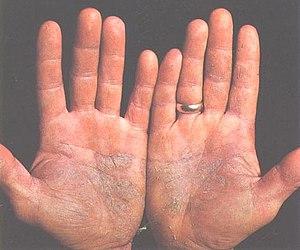 Psoriasis of the palms.