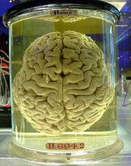 a human brain in a jar