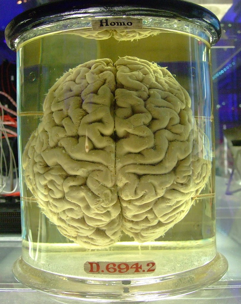 Filehuman Brain In A Vat Jpg