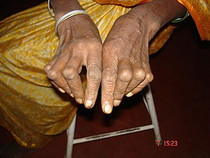 Hand deformity in a patient with Rheumatoid Ar...