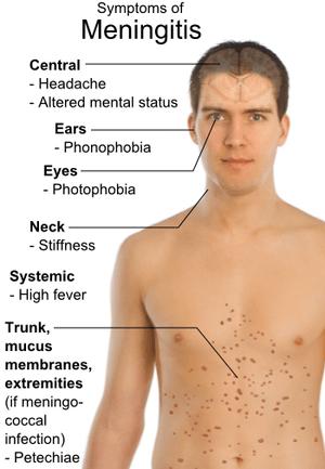 English: Main symptoms of Meningitis. Referenc...