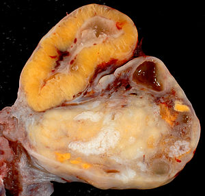 English: This is a normal ovary from a 46-year...