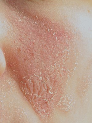 English: Inflammation and flaking rash on a yo...