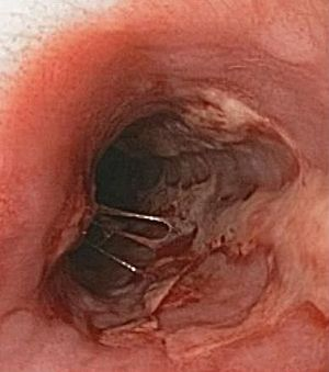 endoscopic view of herpes esophagitis