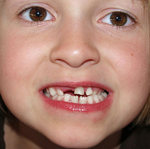 Deciduous teeth of a 6 year old girl.