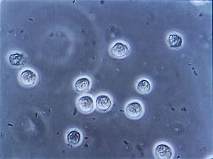 Bacteriuria and pyuria demonstrated at urinary...