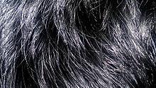 220px Blackhair10 - Vellos humano anatomía y función