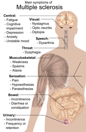 English: Main symptoms of Multiple sclerosis. ...