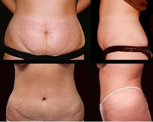English: Abdominoplasty is a cosmetic operatio...