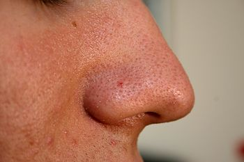 English: Nose from a 20 years old male human. ...