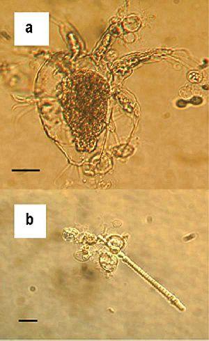 Zoosporangia of Batrachochytrium dendrobatidis...