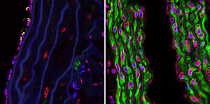 English: Confocal microscopy photographs of th...