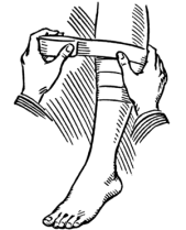 Line art drawing of a bandage being applied.